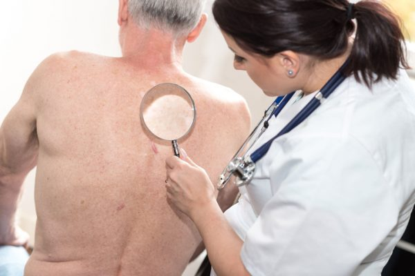 melanoma facts what you should know