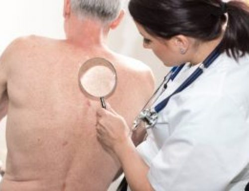 Melanoma Facts: What you need to know