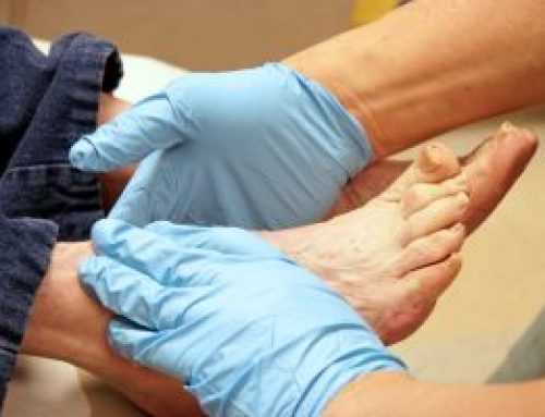 Foot and nail care for the elderly