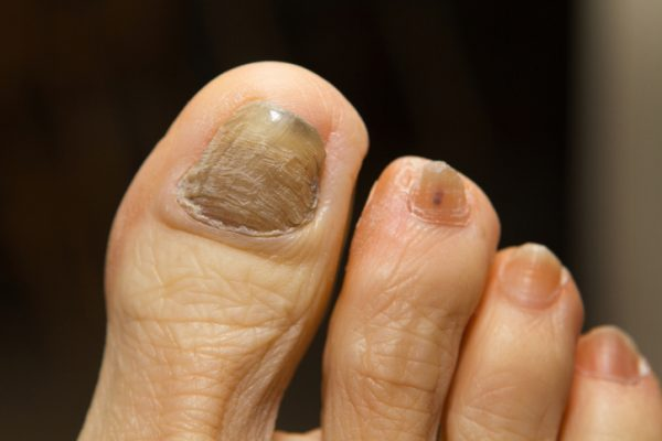 what causes thick toenails in the elderly
