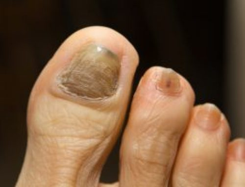 What causes thick toenails in the elderly?